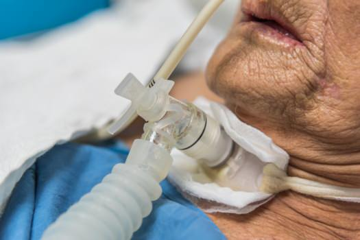 Tracheostomy aid in mans throat